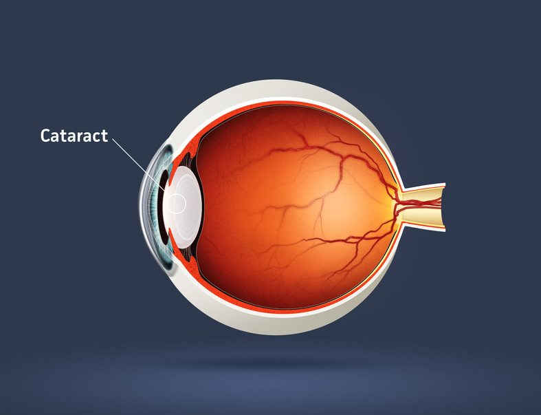 cataract article